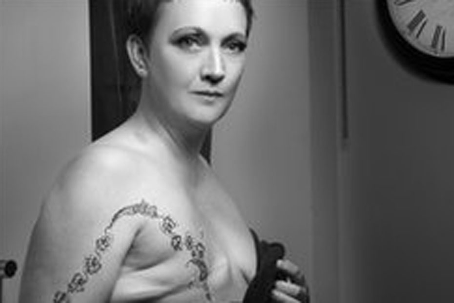 смотреть женщин с удаленной грудью - 8