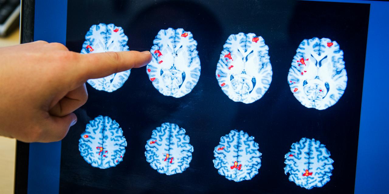 """La transe chamanique sera-t-elle l'un des """"futurs outils"""" de la psychiatrie ?"""